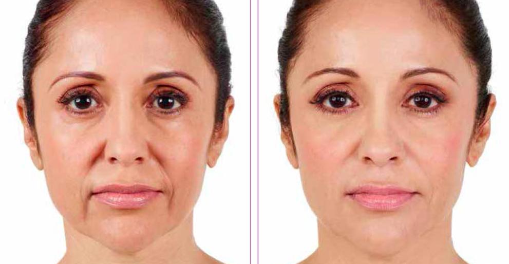 Dermal Filler Treatment | Vujevich Dermatology Associates