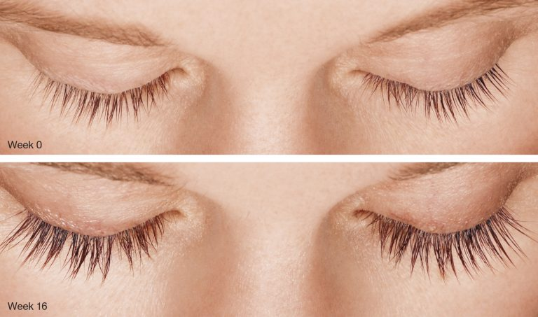 Latisse For Eyelashes Vujevich Dermatology Associates
