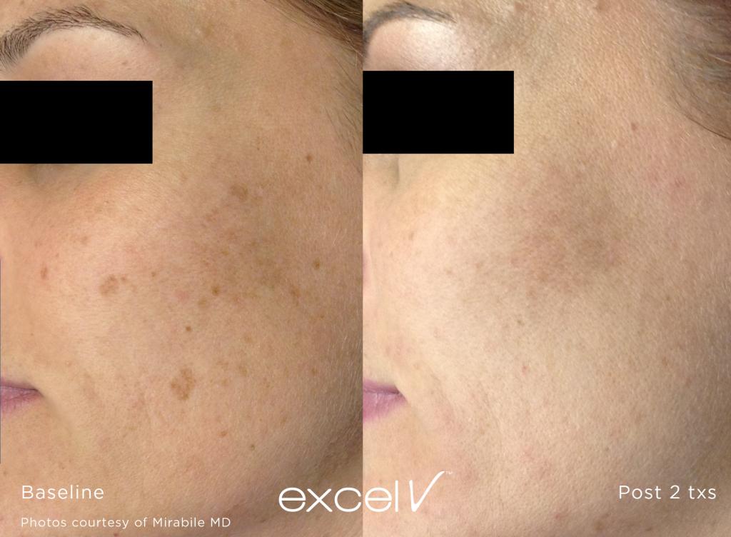 Laser Skin Treatment | Vujevich Dermatology Associates