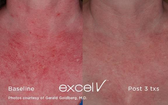 Laser Skin Treatment Vujevich Dermatology Associates
