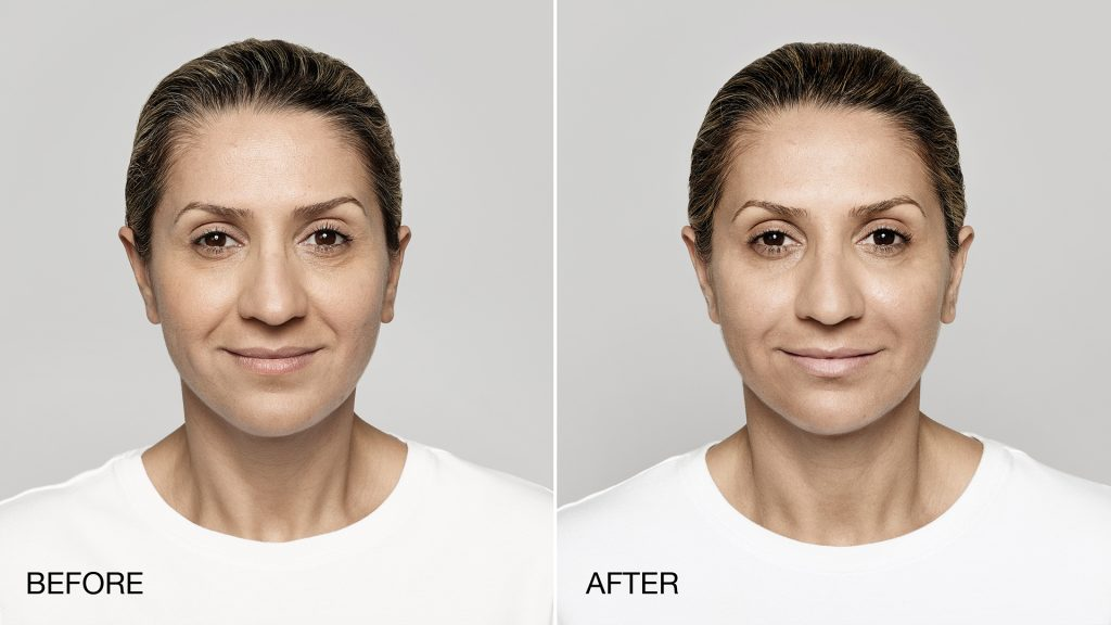 Dermal Filler Treatment | Vujevich Dermatology Associates
