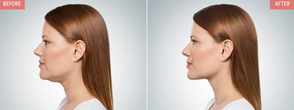 kybella-for-double-chin