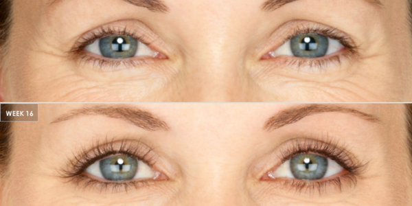 13a22bd4562 How Does Latisse Work to Grow Longer Lashes | Vujevich Associates