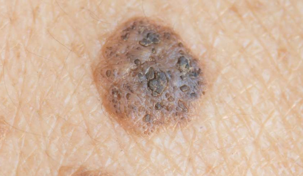 seborrheic keratosis vs. melanoma
